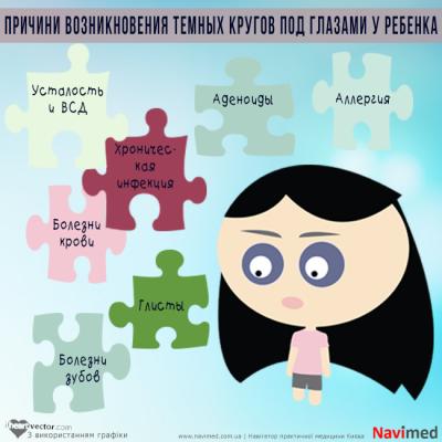 Почему тёмные круги под глазами у ребенка