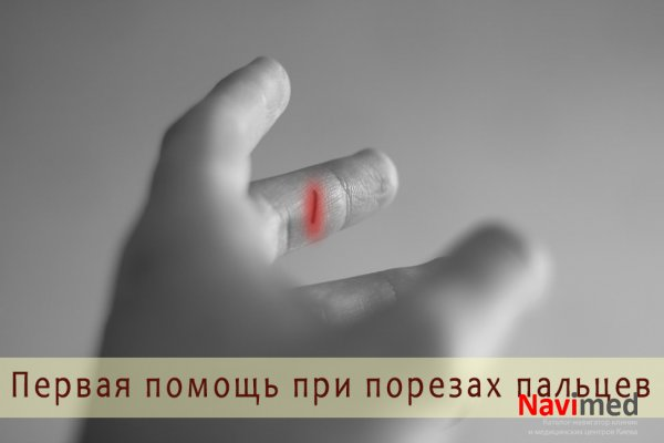 Чем остановить кровь при порезе пальца ножом что делать