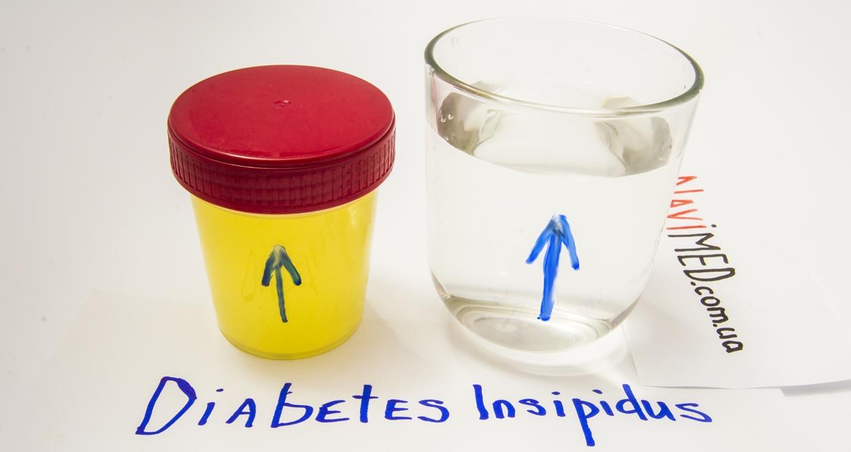 симптомы несахарного диабета у мужчин